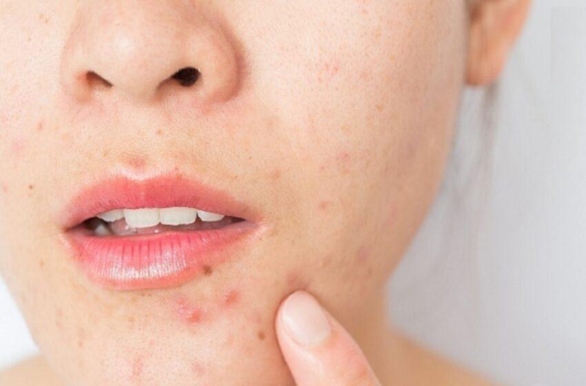 کدام خوراکی ها مفید برای رفع جوش روی پوست هستند؟